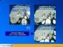 Ablação de lesões hepáticas - Radioablação e Crioterapia